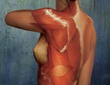 Muscle-Sparing Latissimus Dorsi Flap