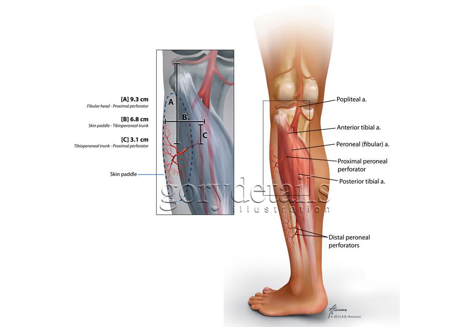 Peroneal (fibular) Artery Perforator Flap Anatomy
