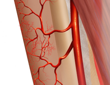 Peroneal Artery Perforator Flap