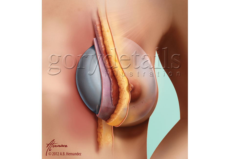 Alloderm Sling for Breast Implant