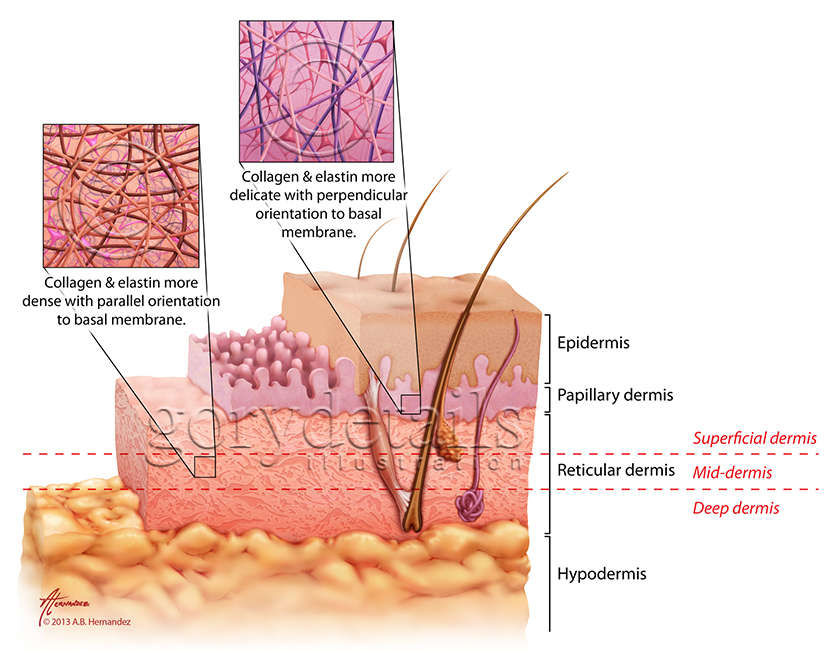 Figure demonstrates the structural anatomy of the epidermis, papillary dermis, reticular dermis and hypodermis.