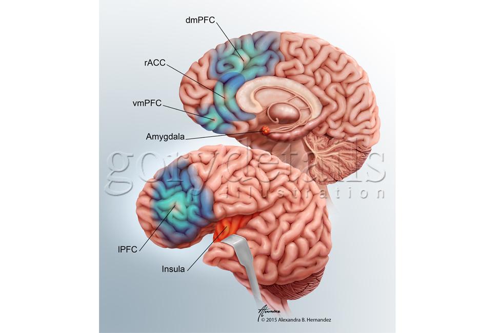 Brain_proj