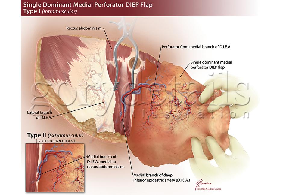 Deep inferior epigastric perforator flap retracted